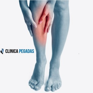 varices clinica