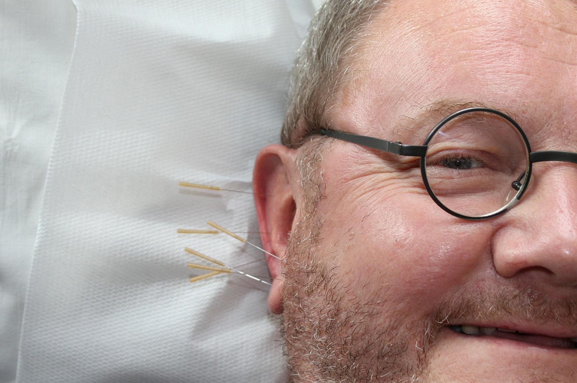 acupuntura santiago galicia